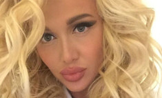 Виктория Лопырева неудачно увеличила губы