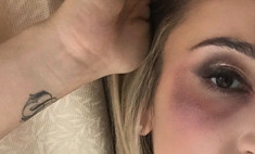 Бузова шокировала фото с синяком под глазом