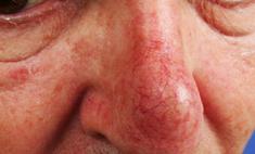 Гепариновая и цинковая мазь от купероза: применение, противопоказания