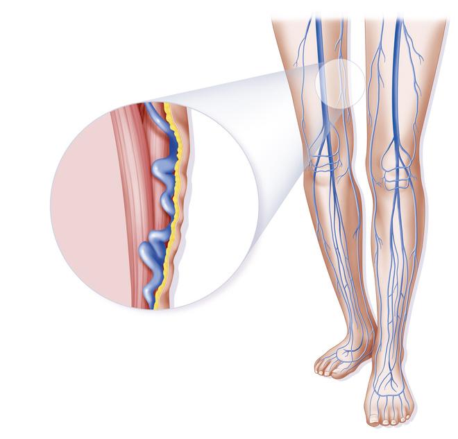 склерозирование вен