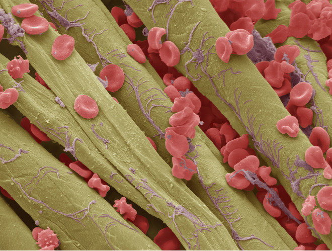 Чем очистить кровь в организме