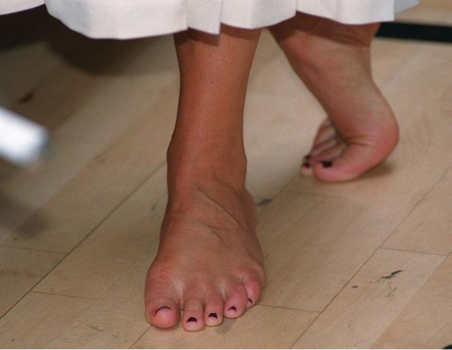 Слоятся ногти на руках причины и лечение дома