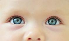 Боремся с конъюнктивитом у новорожденного