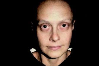 26 сентября 2005. Седьмая химия. Ни ресниц, ни бровей. У меня голое лицо.