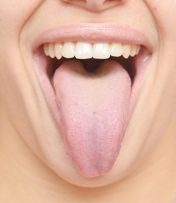 Налет на языке: причины. Видео