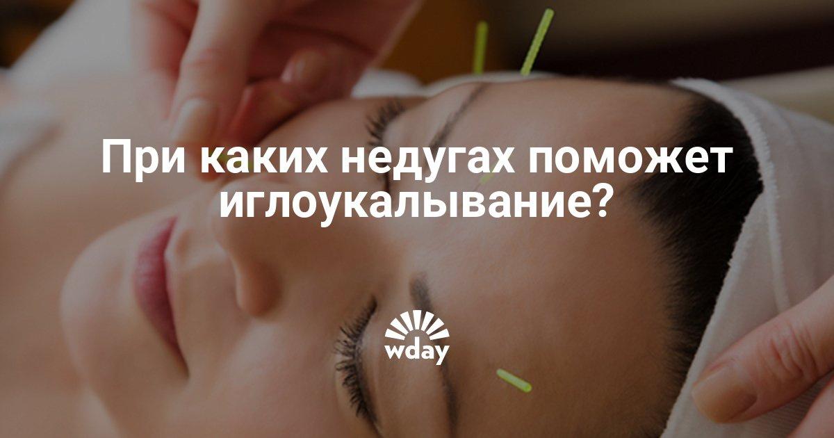 Иглоукалывание в Новокузнецке Сравнить цены и