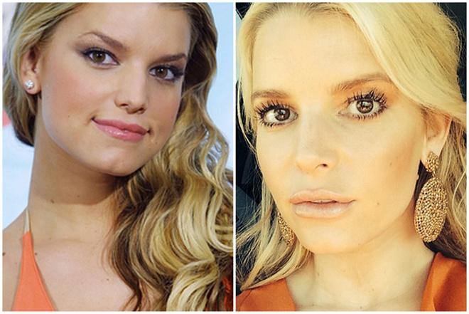 Джессика Симпсон до и после пластики фото