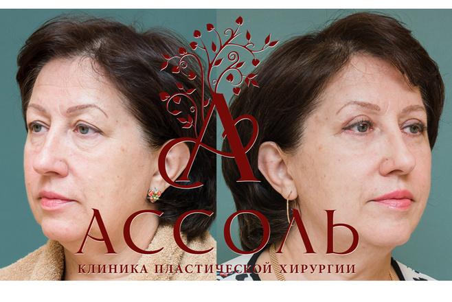 Блефаропластика:до и после
