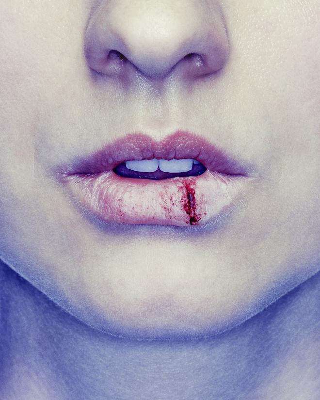 губы сохнут и трескаются