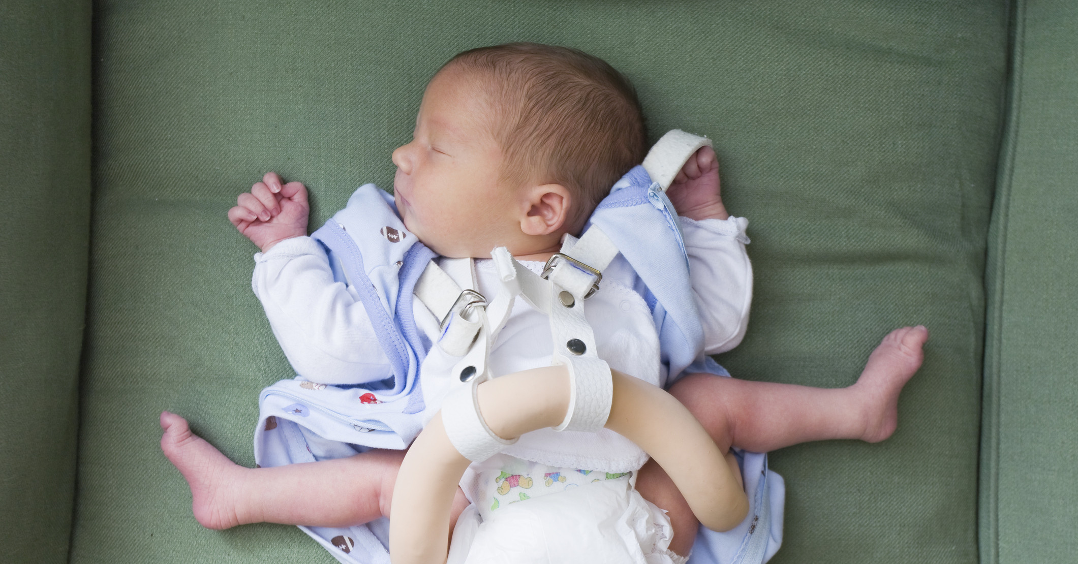 Дисплазия тбс у ребенка фото
