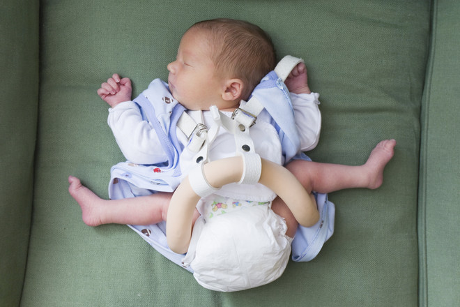 Признаки дисплазии тазобедренного сустава у детей