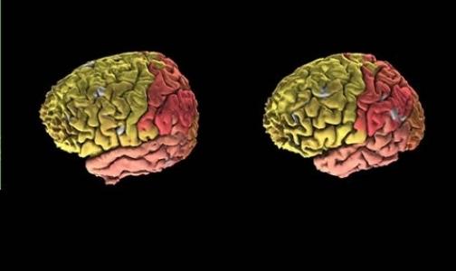 Фото №1 - Создан первый полный цифровой атлас мозга