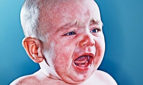 Фото №1 - Почему двухлетнего Максима, покрывшегося коростой с головы до пят, не лечили от аллергии