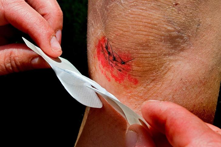 Фото №1 - Ученые изобрели электронный пластырь, который заживляет раны