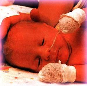 Фото №1 - Низкий уровень холестерина повышает риск преждевременных родов