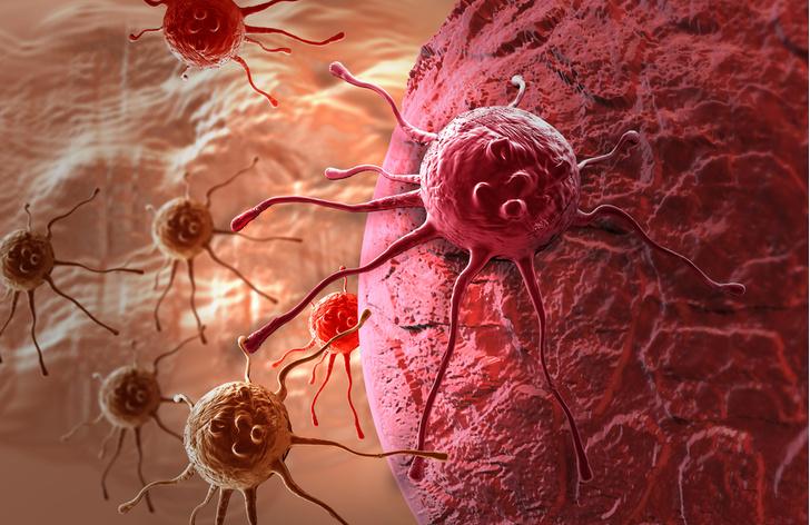 Фото №1 - Рак оказался самой частой причиной смерти в европейских странах