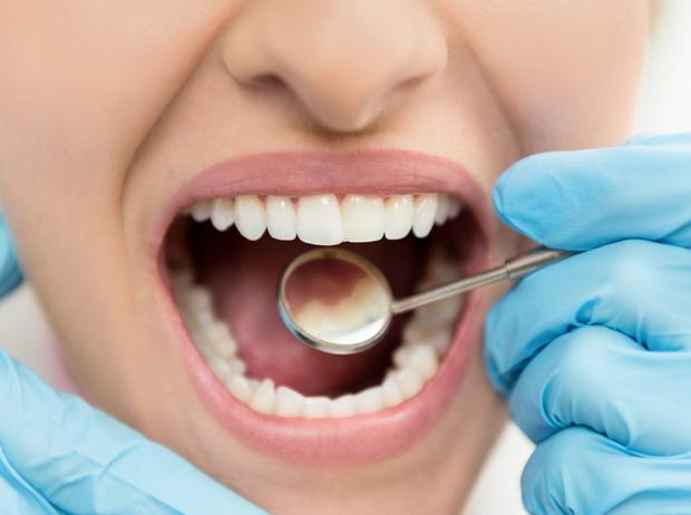 Фото №2 - Мифы и правда об имплантации зубов