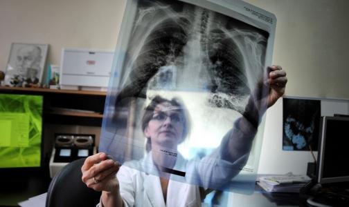 Фото №1 - ВОЗ планирует полностью ликвидировать туберкулез в 33 странах мира, но не в России