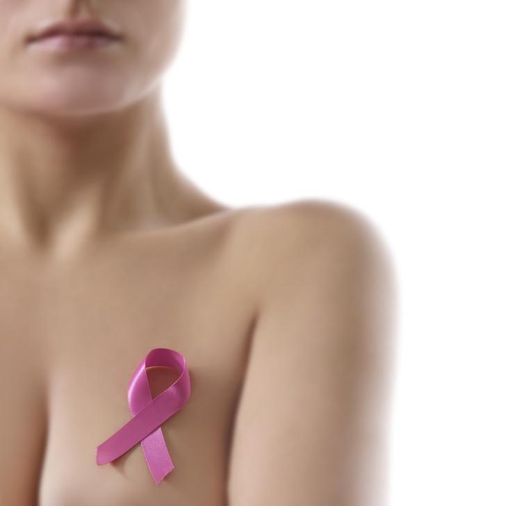 Фото №1 - Названы основные причины развития рака груди