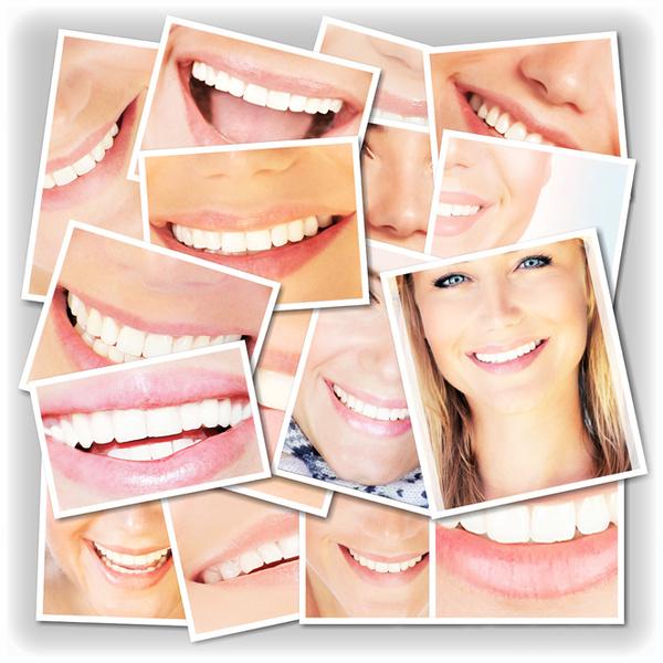 Фото №1 - «Какие виды отбеливания зубов лучше и безопаснее?»