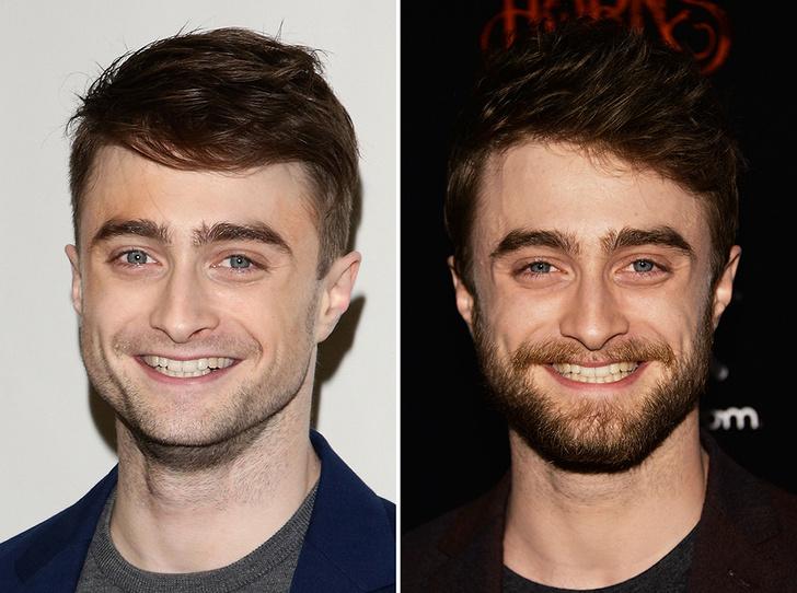 Фото №24 - 35 звездных фото, доказывающих, что иногда лучше побриться