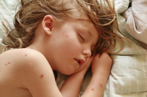 Если ребенка искусали комары