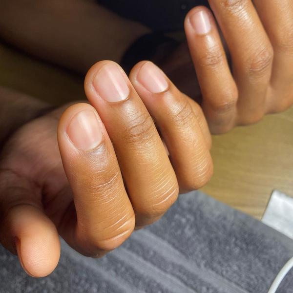 Фото №5 - Как перестать грызть ногти