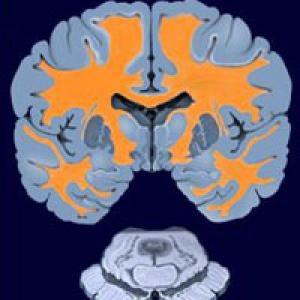 Фото №1 - Найдены гены, отвечающие за рассеянный склероз