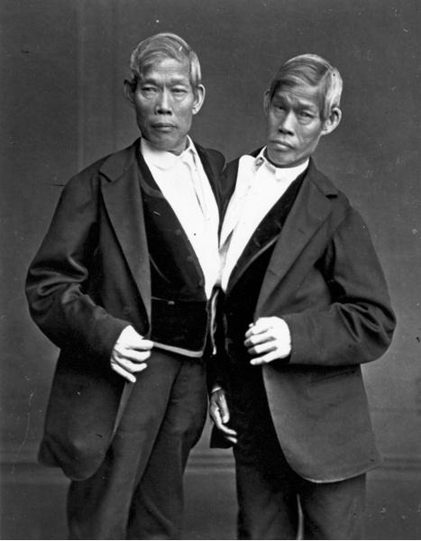 Фото №2 - Две матери одного сына: как сиамские близнецы Блажек жили, любили и родили