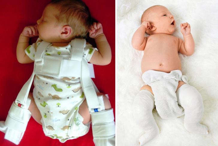 Фото №1 - Дисплазия тазобедренных суставов у детей до года: помогут стремена и подгузники!