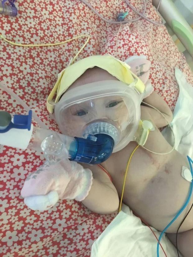 Фото №2 - Шестимесячная малышка с пороком сердца победила коронавирус