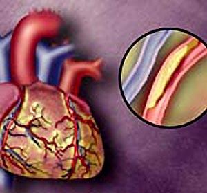 Фото №1 - Холестерин вызывает изменение РНК