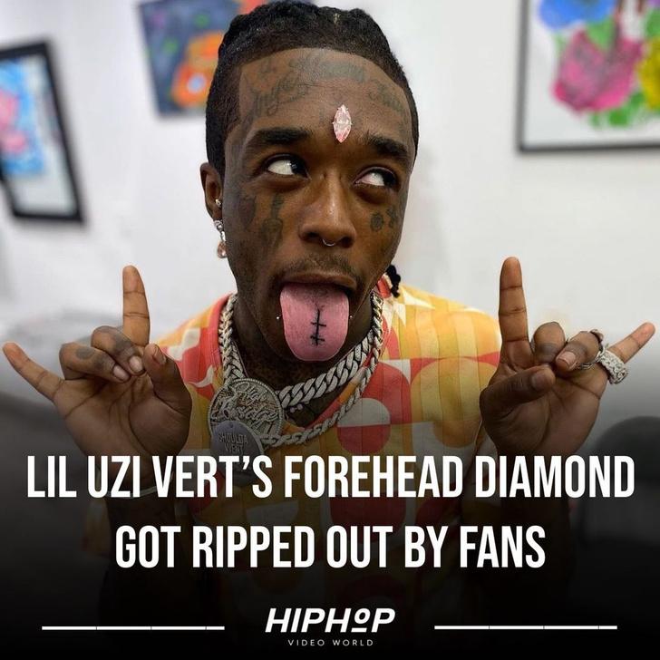 Фото №1 - Фанаты рэпера Лил Узи Верт опять стащили его розовый бриллиант со лба
