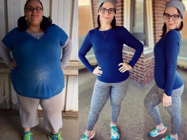 Американка показала последствия похудения