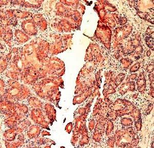 Фото №1 - Установлена причина рака поджелудочной железы