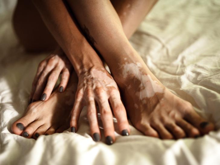 Фото №3 - Самое загадочное кожное заболевание: что такое витилиго, и можно ли его вылечить