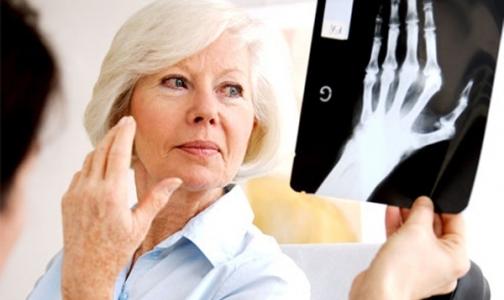 Фото №1 - «Ревматоидный артрит — коварное заболевание, чем-то напоминающее онкологическое»