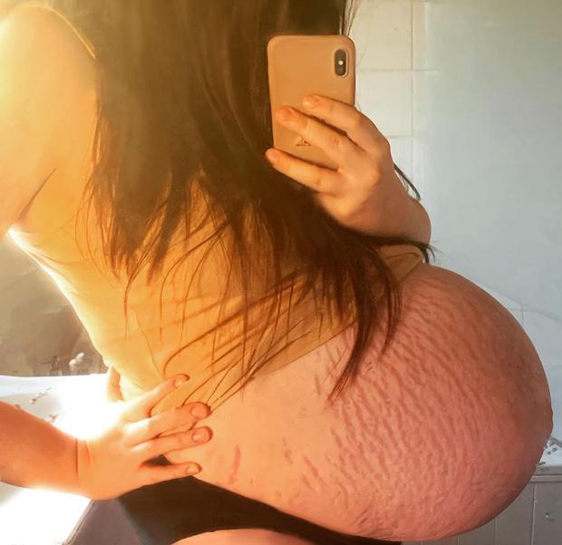 Фото №2 - «Все медсестры с ней фотографировались»: женщина родила гигантского ребенка