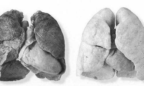 Фото №1 - Медики научились диагностировать рак легких по дыханию