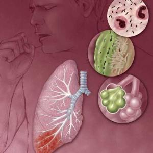 Фото №1 - Пневмония не поддается антибиотикам