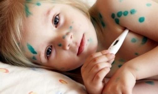 Фото №1 - Какими детскими болезнями болеют взрослые петербуржцы