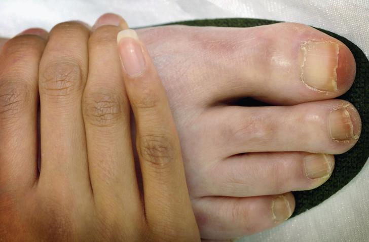 Больные ногти ног