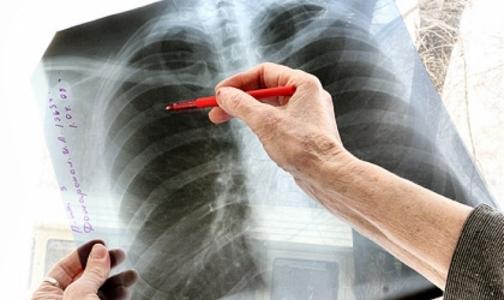 Фото №1 - В России создадут единый регистр больных туберкулезом