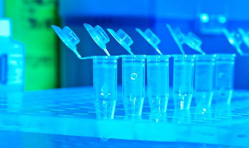 Фото №1 - В Санкт-Петербурге можно сдать анализы на антитела к коронавирусу SARS-CoV-2