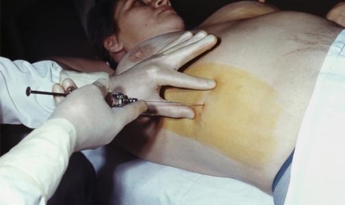 Фото №1 - Лечить гепатиты В и С в Петербурге можно бесплатно или за 50 % стоимости курса терапии