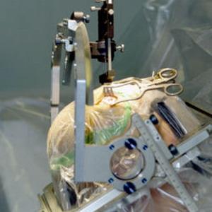 Фото №1 - От ожирения спасут электроды в мозгу