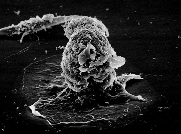 Фото №1 - Учёные утверждают, что, кажется, нашли первопричину рака