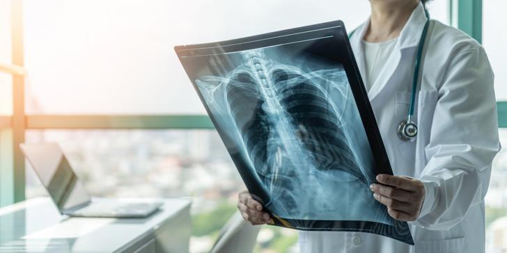рак легких онкология