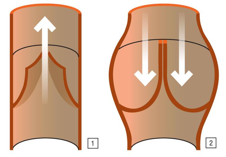 (1) Поток, текущий в&nbsp;направлении сердца, приминает клапан и&nbsp;беспрепятственно проходит поверх него <br /> (2) Движение в&nbsp;противоположную сторону невозможно: кровь наполняет «карман», тот расправляется и&nbsp;перекрывает кровоток