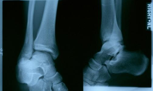 Фото №1 - В петербургских поликлиниках решились проблемы с рентгеном